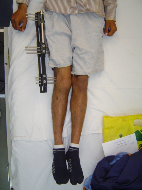 Legs Equal After Lengthening