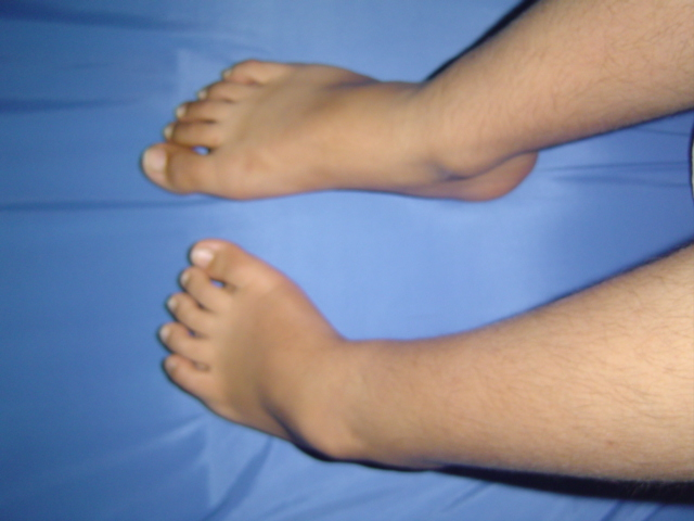 Compare Both Feet (Before Surgery)