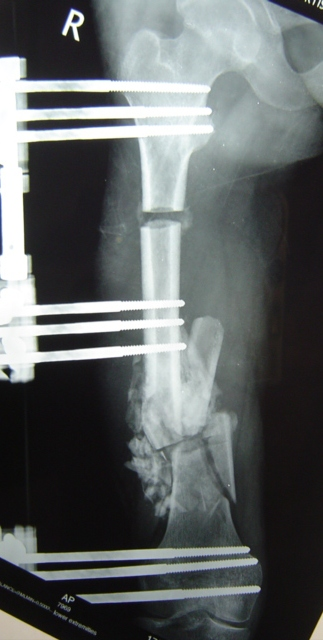 Note Beginning of Bone Lengthening